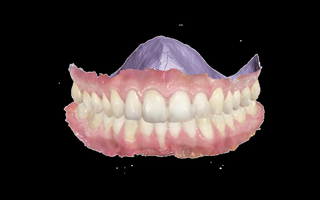 kieferorthopaedie-zahnsimulation-2